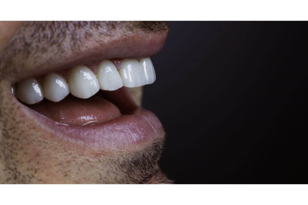 Veneer Teeth As Seen On TV