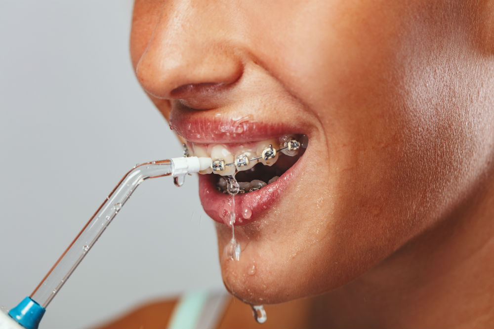 Best Water Flosser for Braces
